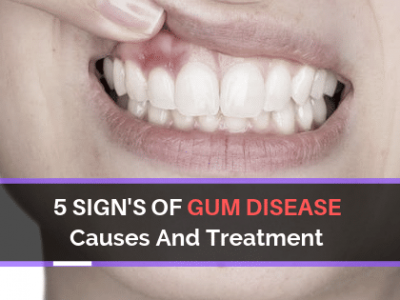 5 Sign's of Gum Disease, Causes And Treatment