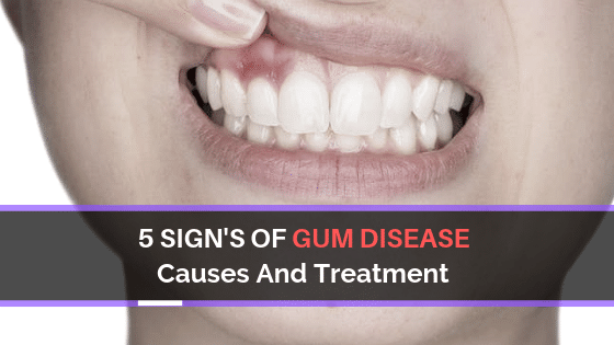 Acme Dental Gum Disease causes and treatment