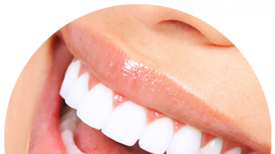 Different types of cosmetic dental procedures