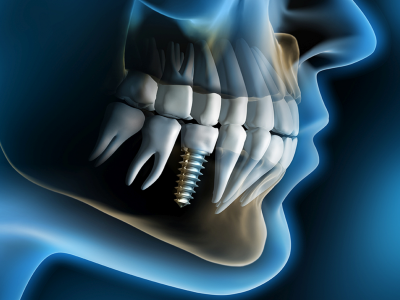 Are you looking for affordable dental implants?