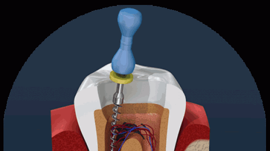 Root canal treatment – A detailed guide